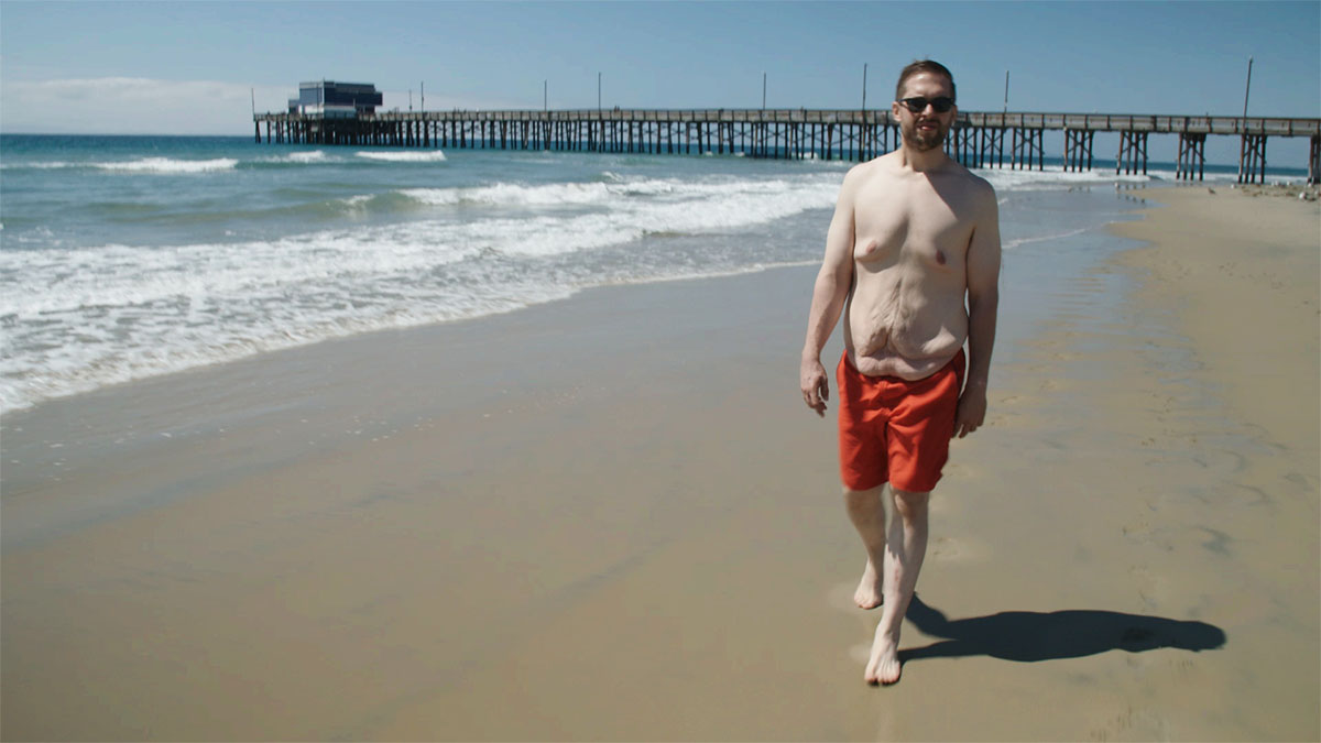 Mi vida con 300 kilos: cirugía final